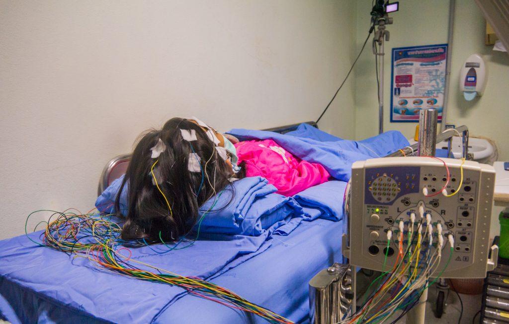 vídeo-electroencefalografía